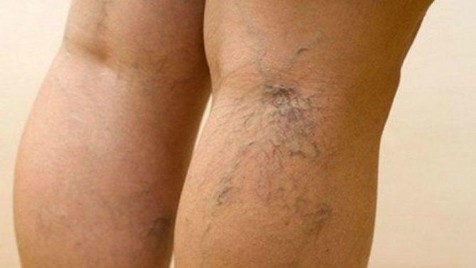 Лазерное лечение для лечения сосудистых звездочек и нитевидных вен на ногах